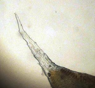 Hedwigia stellata. Hér sést greinilega litlaus, tenntur hároddur. Ljósm. ÁHB.