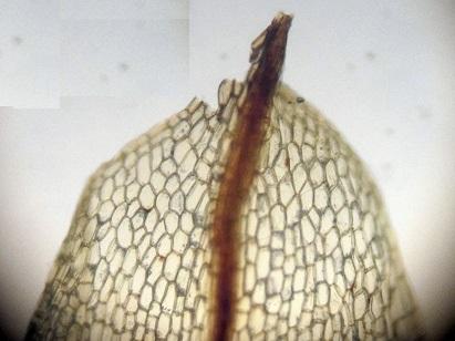 Funaria hygrometrica. Dæmigerður blaðendi. Smásjármynd ÁHB.